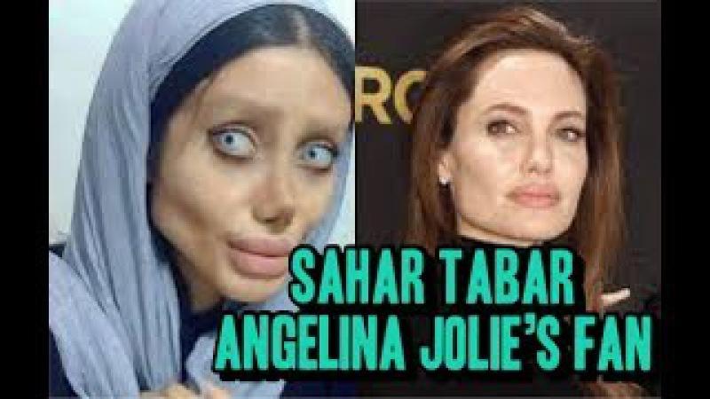 Sahar Tabar Angelina Jolie's Fan 2017 || Before and After 50 surgeries | Malayalam news