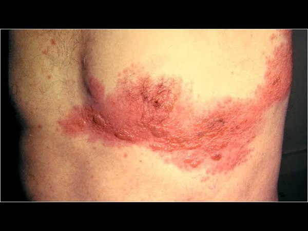 Is Shingles Contagious, What Are Shingles, Herpes Zoster Pictures, Shingles Home Remedies