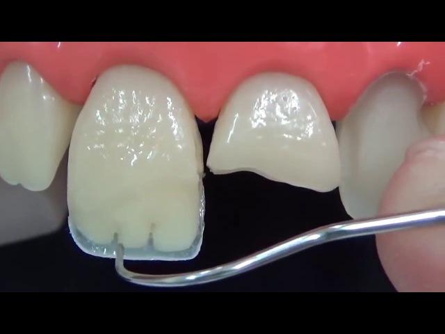Прямая реставрация переднего зуба за 3 минуты ускоренное видео Восстановление переднего зуба