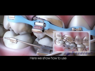 Брекеты и их элементы. Пропедевтика ортодонтии.
