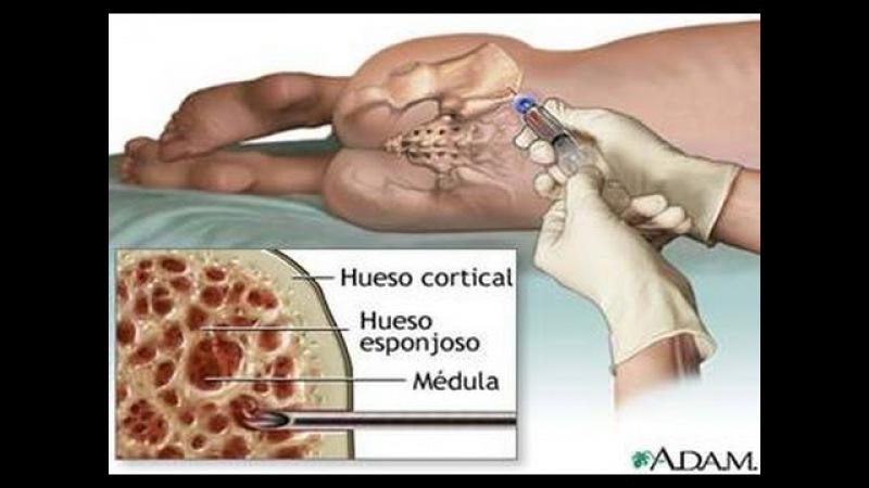 Como se detecta la leucemia