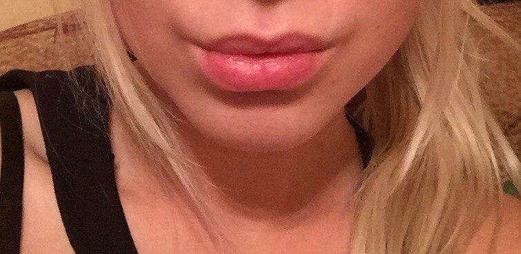 Инъекции гелей: увеличение губ, борьба с носогубными складками и ...