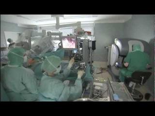 Простатэктомия - удаление рака простаты в Германии