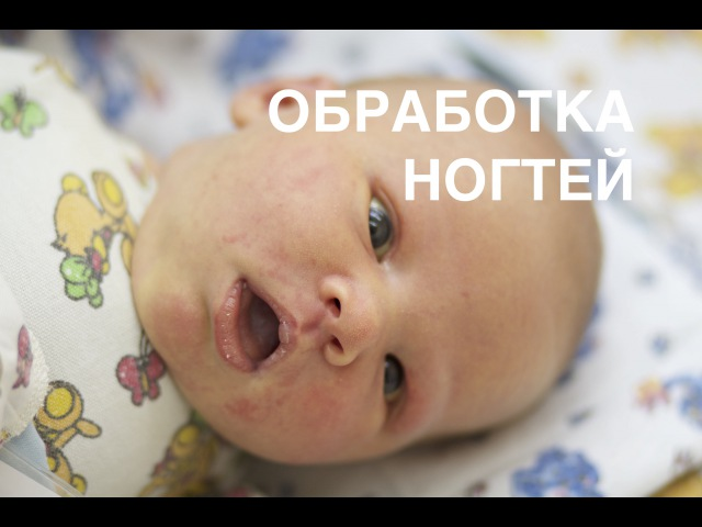 Как обрабатывать ноготочки новорожденных II ОВП