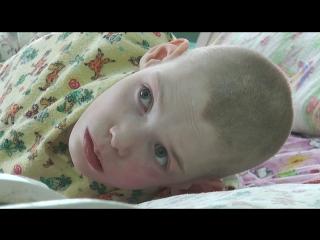 Глаза брошенного умственно отсталого ребенка. Волонтерский центр