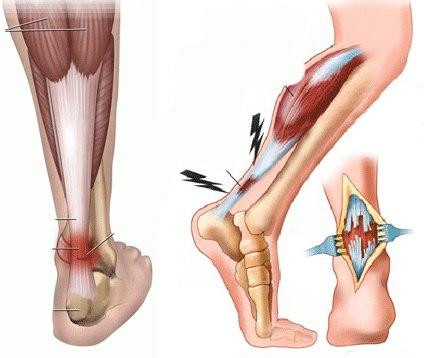 боль в щиколотке ноги