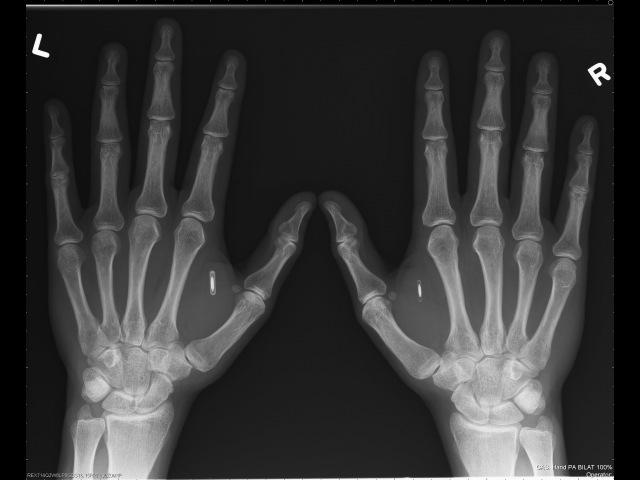 Subdermal NFC chip implants
