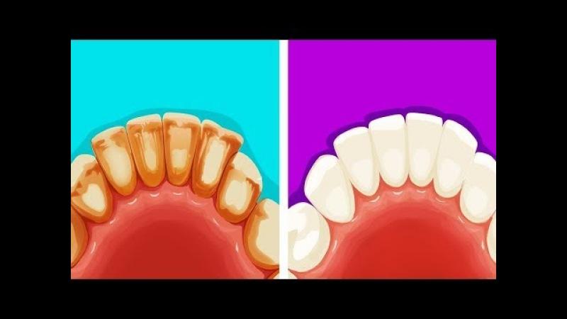 8 Эффективных и Натуральных Способов Избавиться от Зубного Налета смотреть онлайн без регистрации