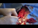 Солнечные ожоги и опухоли у собаки породы питбуль с частичным альбинизмом