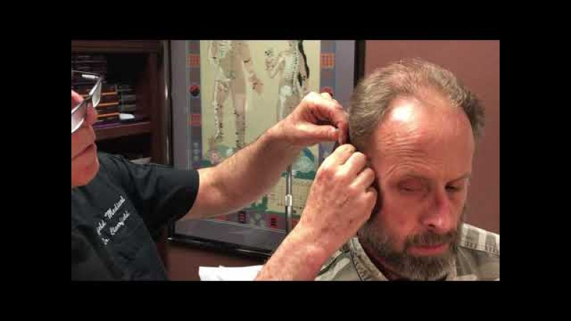 Reno Doctor William Clearfield Battlefield Acupuncture for Treatment for Anxiety, Pain, Tinnitus