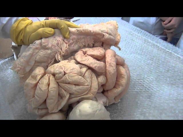Комплекс органов брюшной полости (торс)