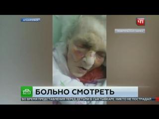 Страшное происшествие с ветераном ВОВ, Анной Зыковой в больнице Архангельска!
