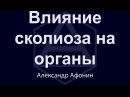 Влияние искривления позвоночника (сколиоза) на органы | Александр Афонин