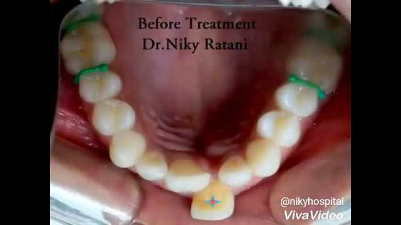 Amazing results of metal braces in adult patienthow do braces work