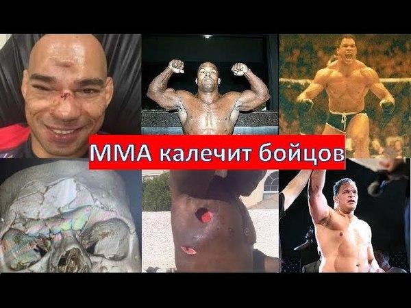 Тёмная сторона ММА - травмы и убитое здоровье бойцов