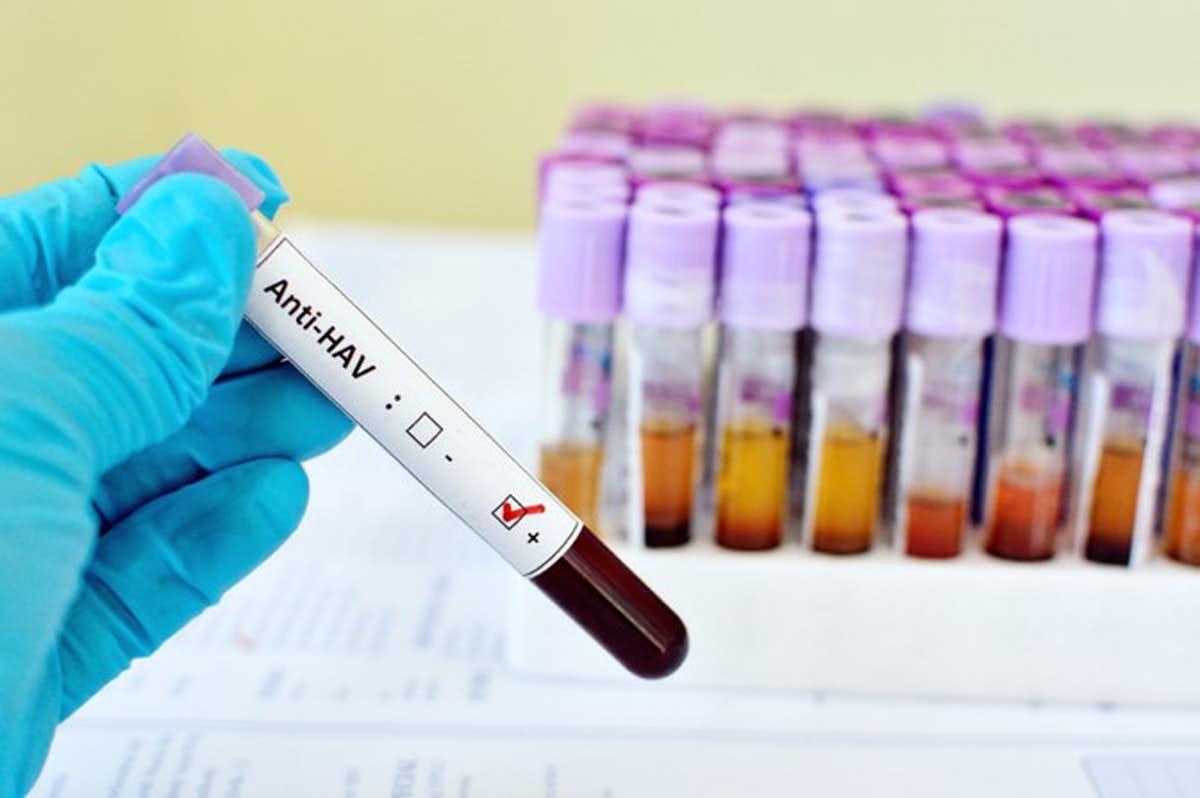 Что такое гепатит B?