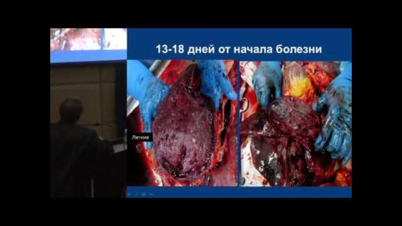 Инфекционные болезни и антимикробные средства 17