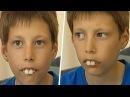 В Школе над Ним Издевались Из-За Его Зубов. Но Спустя Несколько Лет Он Удивил Всех!