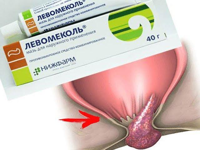 Индометацин Свечи При Геморрое