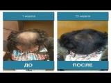 Миноксидил для волос   Minoxidil от облысения   3 месяца использования миноксидила результат