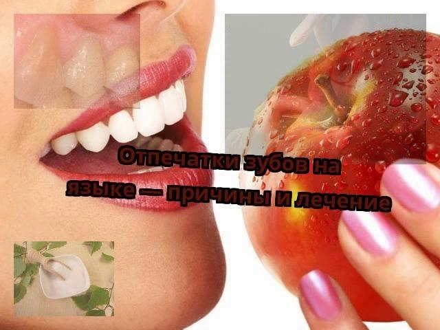 Отпечатки зубов на языке — причины и лечение