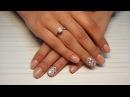 Хиромантия. Пятна, лунки, трещины, заусенцы на ногтях. Значение