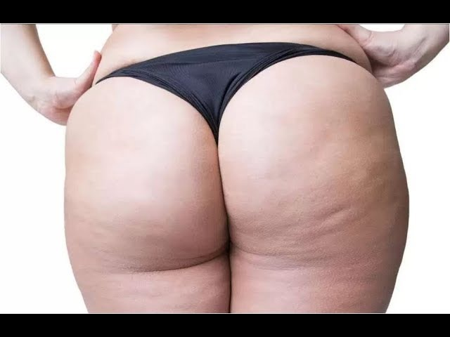 Comment Perdre Cellulite Cuisse, Anti Cellulite, Produit Anti Cellulite Efficace, Réduire Cellulite