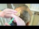 Выпадение волос лечение облысения как остановить и предотвратить