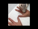 Лазерное омоложение кистей рук, PALOMAR ICON