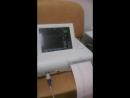 тестирование аппарата КТГ