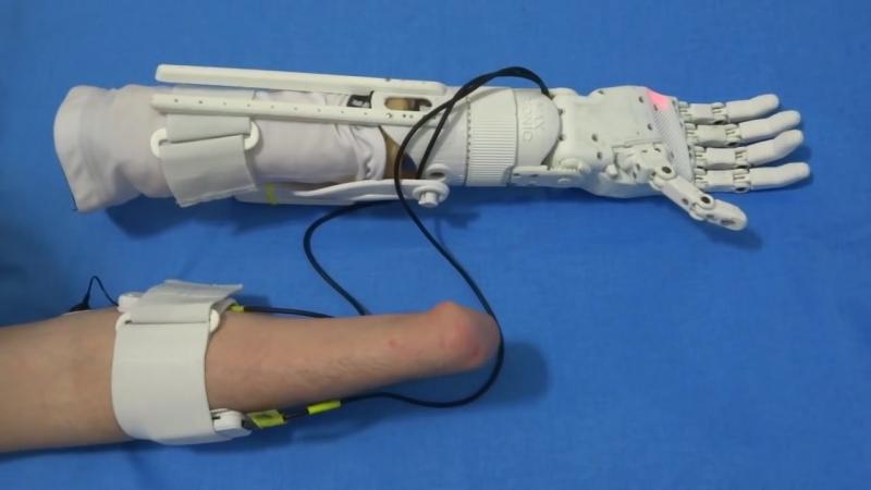 Протез руки напечатанный на 3D принтере (The prosthesis hand printed on a 3D printer)