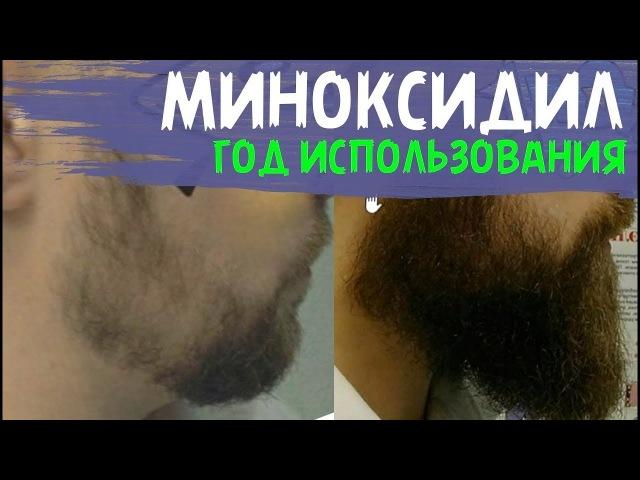 КАК СДЕЛАТЬ БОРОДУ ГУШЕ Увеличиваем густоту бородыы МИНОКСИДИЛОМ