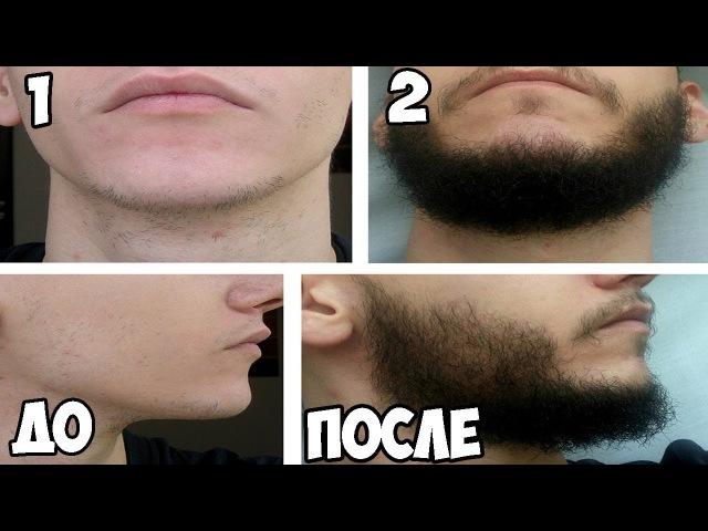 3 ЛЕГКИХ способа как быстро отрастить ГУСТУЮ И КРАСИВУЮ БОРОДУ. Уже через месяц начнет расти борода!