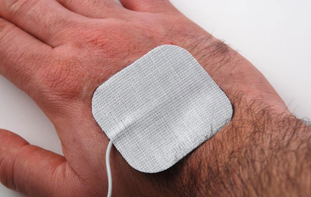 Нейромышечную стимуляцию проводят путем пропускания электрического импульса