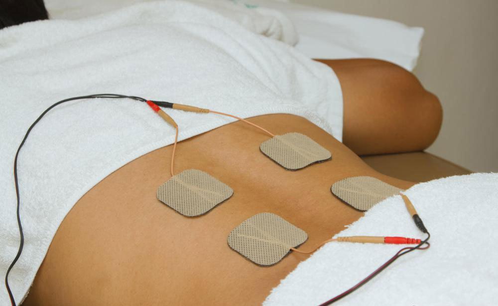 Нервно-мышечная электрическая стимуляция