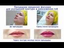 Врач косметолог Зайцева Ирина Процедура введения филера для улучшения контура и омоложения губ