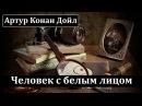 Артур Конан Дойл Человек с белым лицом Аудиокнига