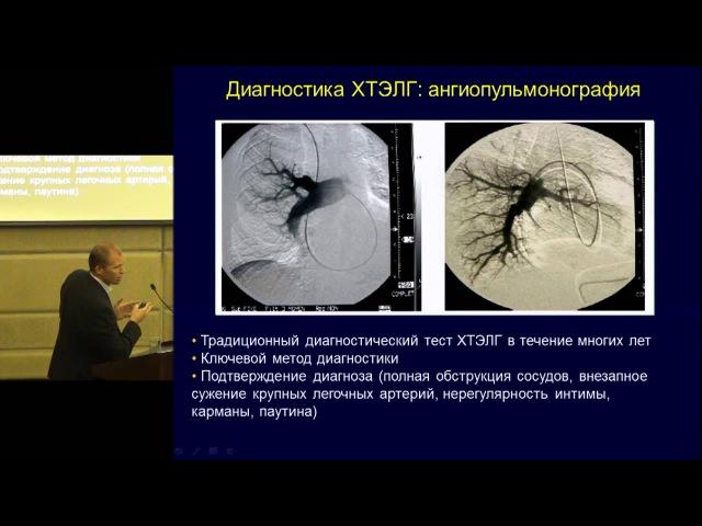 Хроническая тромбоэмболическая легочная гипертензия