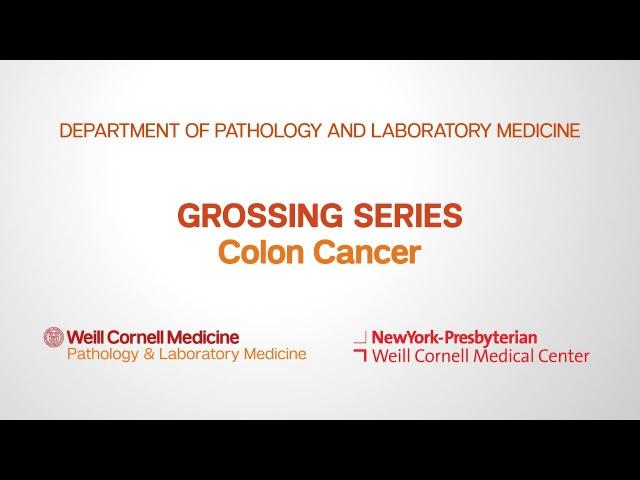 Grossing Colon Pathology Specimens Department of Pathology and Laboratory Medicine