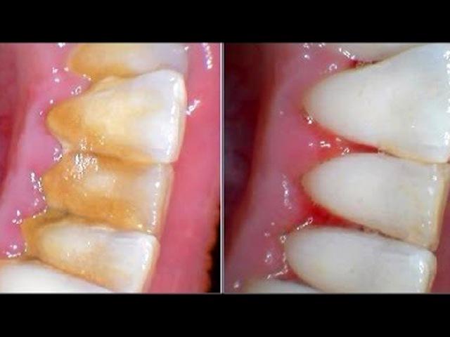 Устраните КАМНИ НА ЗУБАХ за 😉5 мин Стоматологи ❌НИКОГДА не Скажут об Этих Рецептах