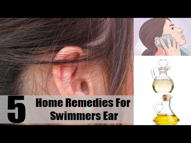 5 Home Remedies for Swimmer's Ear.