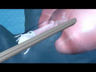 Бронхоскопия с Lumenis CO2