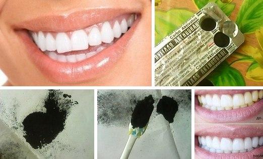 Рецепт отбеливания зубов углем