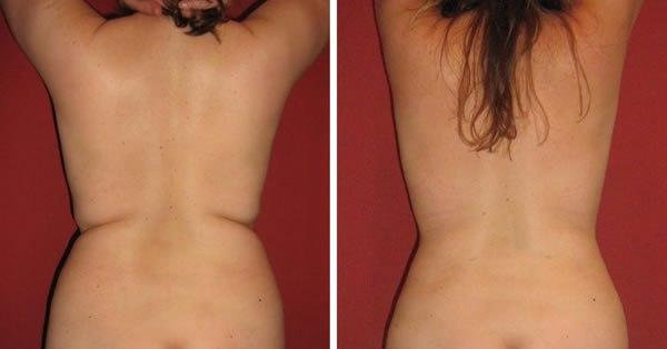 Массаж от целлюлита, массаж для похудения, антицеллюлитный массаж до и после,