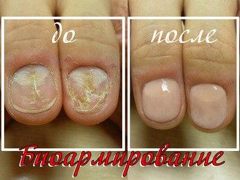 Укрепление ногтей в домашних условиях после гель
