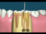 This is how root canal surgery works