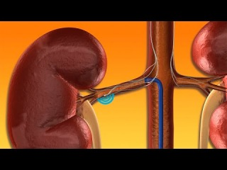 Инструментальный метод лечения эссенциальной АГ: радиочастотная денервация почечных артерий