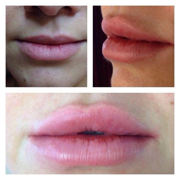 Сухость губ после увеличения