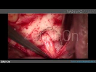 odontogenic mandibular cyst