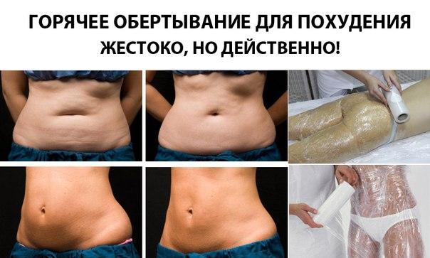 Обёртывание для похудения в домашних условиях самое эффективное для бедер